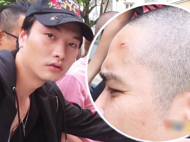 Thái tử Thiên Thai tiết lộ sự thật việc bắn trúng đầu quay phim khi đóng Quỳnh Búp Bê