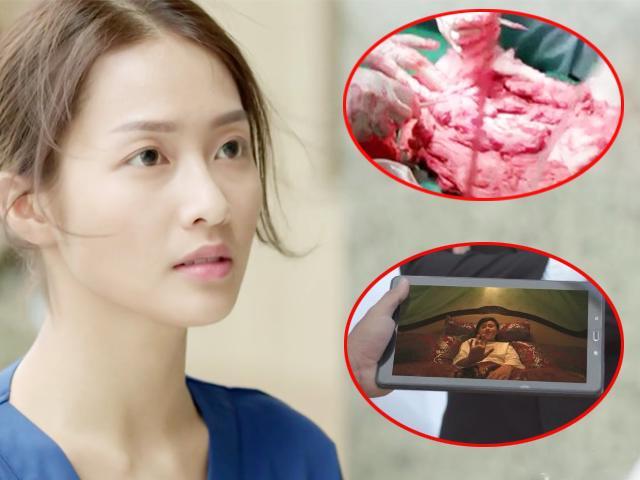Sạn trời ơi Hậu Duệ Mặt Trời Việt: Dùng tảng thịt phẫu thuật, gọi video nhưng vô tư che camera