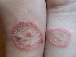 Hai cô gái bị nấm da chỉ vì có chung một sở thích không ít người có