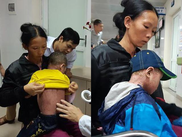 Bé trai 5 năm sống trong thân hình người cóc vì sai lầm của mẹ từ khi 2 tháng tuổi