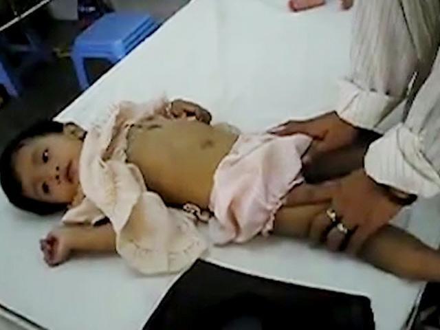 Trẻ giật mình chới với và hai dấu hiệu quan trọng báo mẹ biết bé mắc tay chân miệng