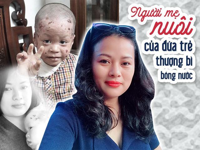 Mẹ đơn thân bán 2 căn nhà cưu mang bé bị bệnh nặng, mỗi tháng tiêu tốn 100 triệu đồng