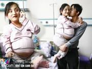 Cô gái nặng 20kg có bầu bị cả nhà bắt bỏ thai, hàng tuần đều được chồng bế đi khám