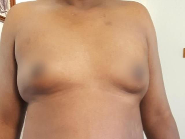 Ngực bỗng phát triển như phụ nữ, đi khám ngỡ ngàng vì cậu nhỏ cũng biến mất luôn