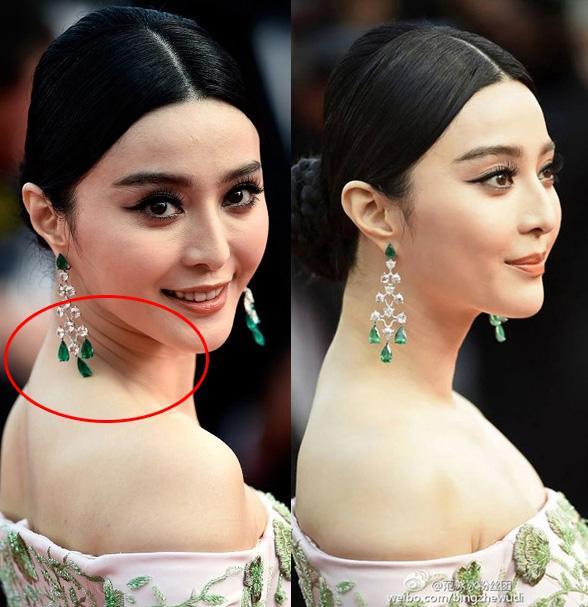 Chăm sóc da mặt nhưng bỏ qua vùng da này thì đừng hỏi sao bạn ngày càng già đi