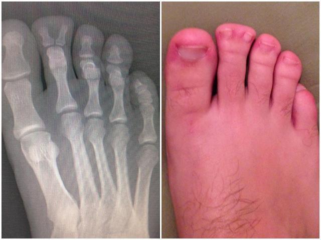 Những sự thật bất ngờ bạn chỉ thấy được qua phim chụp X-quang, điều cuối cùng gây sửng sốt
