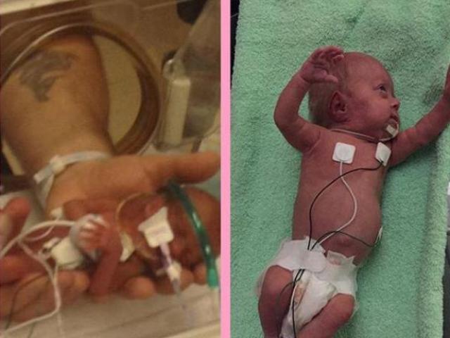 Bé gái sinh sớm 14 tuần trong đoạn clip rúng động hàng triệu dân mạng giờ ra sao?