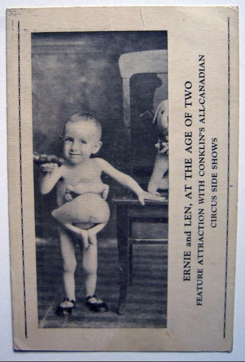 Cậu bé 2 tuổi với phần bụng dính liền với thân của người anh em song sinh chưa kịp thành hình đã xuất hiện trong một chương trình biểu diễn xiếc tập hợp những người kì dị nhất thế giới.