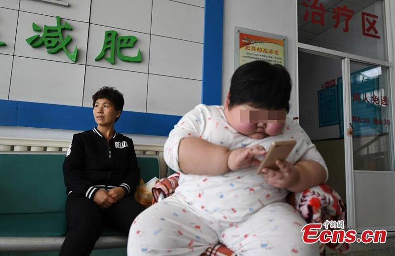 Trường hợp cậu bé mới 7 tuổi ở Trung Quốc đã nặng tới 40kg, thân hình núng nính thịt gây xôn xao mạng xã hội những ngày qua. Đặc biệt, khi được thăm khám, bác sĩ nhận định cậu bé bị suy dinh dưỡng. (Ảnh minh họa)