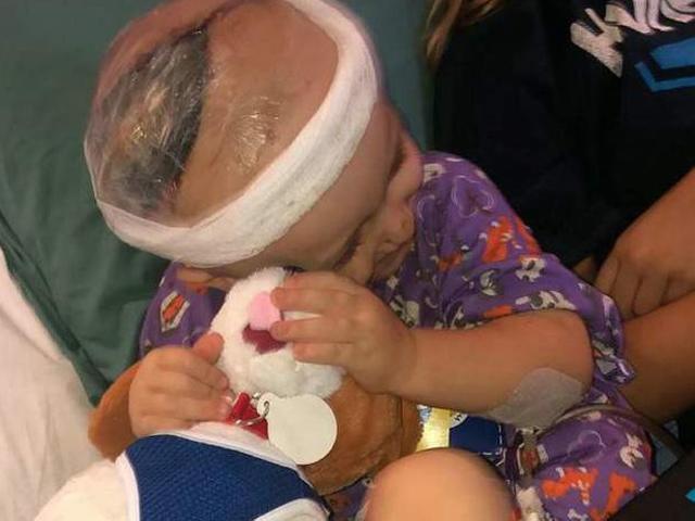 Vết thương khủng khiếp trên đầu bé 2 tuổi vì 1 phút lơ là của mẹ khiến ai cũng xót
