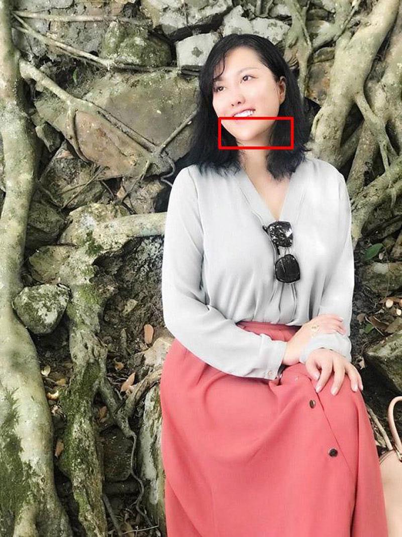Phi Thanh Vân xuất hiện với mũi biến dạng, cằm lệch một bên khiến ai cũng nghĩ rằng cô đang gặp phải biến chứng của PTTM.