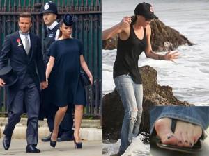 Phải phẫu thuật chân vì ham giày cao, vợ Beckham vẫn quyết không từ bỏ sở thích
