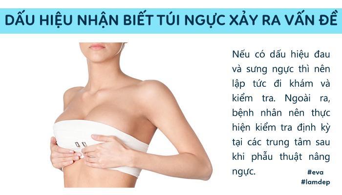 Câu trả lời bất ngờ từ chuyên gia: Túi ngực có thế bị rách, thủng,... chứ không thể bị NỔ!