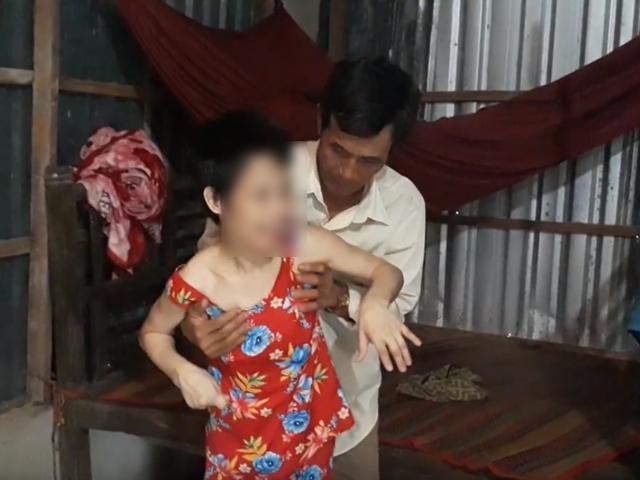 Cô gái bại não bị gã đàn ông đồi bại xâm hại, phá thai đến nỗi da bọc xương