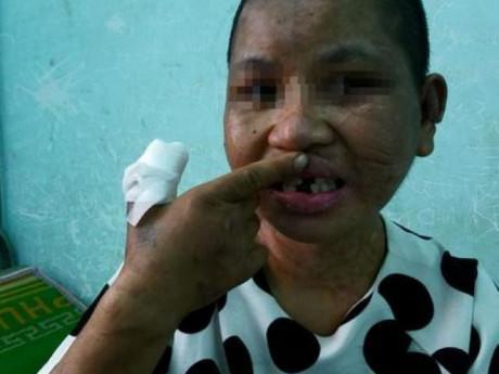 Thông tin mới vụ cô gái giúp việc 9X bị chủ hành hạ đến biến dạng, sảy thai