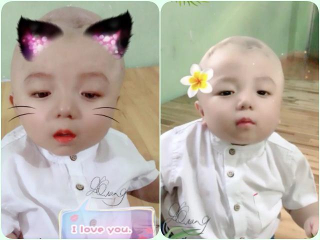 Hé lộ hình ảnh mới của bé Đức Lộc bị não úng thuỷ: Bụ bẫm, đẹp trai chuẩn soái ca