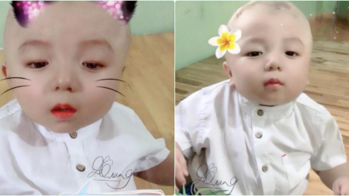 Hé lộ hình ảnh mới của bé Đức Lộc bị não úng thuỷ: Bụ bẫm, đẹp trai chuẩn \
