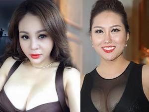 """Kỷ lục những lần dao kéo nghe qua thấy thót tim của các """"nữ hoàng thẩm mỹ Việt"""""""