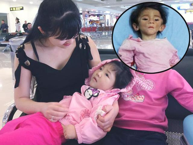 Hình ảnh mới của bé Lào Cai bị suy dinh dưỡng: Ai cũng choáng vì béo bụ bẫm, xinh xắn