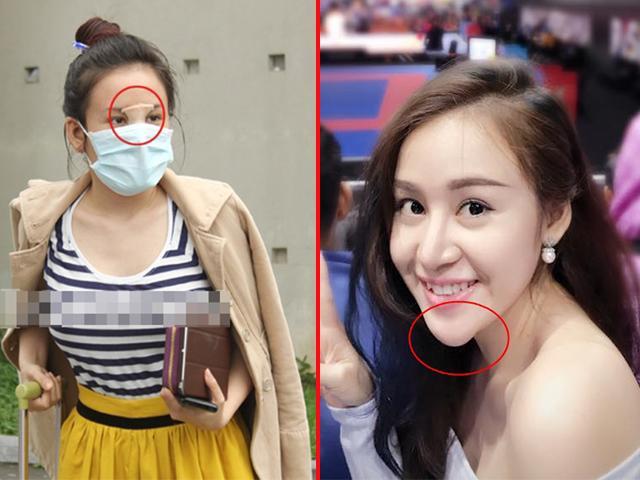 Suýt không nhận ra Bà Tưng ngày nào, dung mạo biến dạng đến mức khiến fan giật mình!