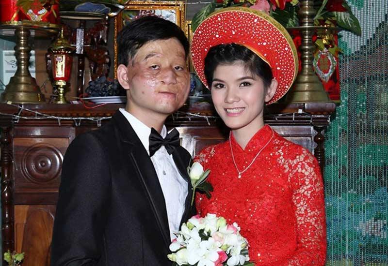 Gặp tai nạn ngoài ý muốn vì bom mìn từ năm 2001, Trần Lâm (1991)bị thương tật vĩnh viễn 90% gương mặt. Vì tự ti ngoại hình xấu xí, Lâm không dám yêu ai cho đến khi gặp Thu Hiền, cô gái xinh đẹp sinh năm 1994.