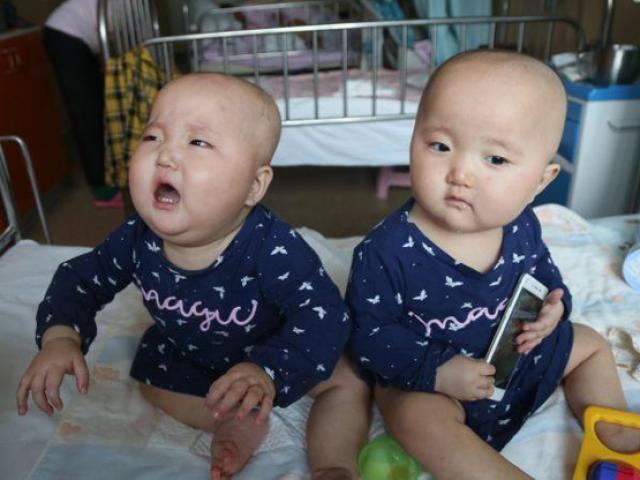 Hai con sinh đôi 11 tháng bị ung thư, mẹ chua xót khi nghe câu: Hãy từ bỏ 1 đứa