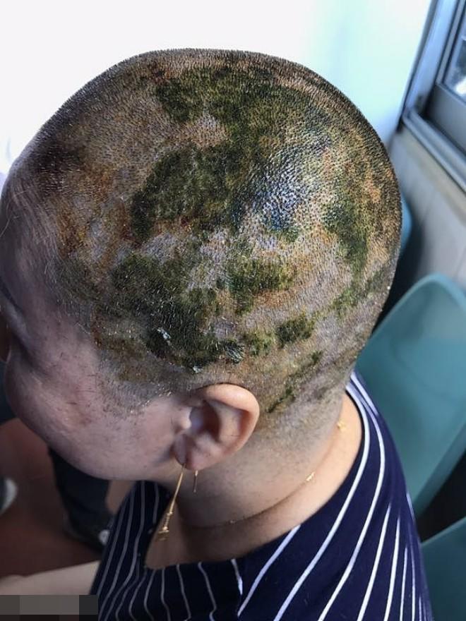 Nhuộm tóc không cẩn thận, mặt bạn sẽ biến dạng, mất thị lực thậm chí tử vong như chơi đấy!