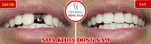 Ngay bây giờ đã có giải pháp trồng răng cửa vĩnh viễn