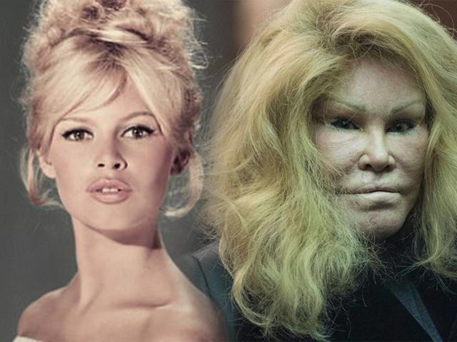 Chi cả núi tiền thẩm mỹ, miêu nữ tỉ phú gây chấn động với gương mặt biến chứng khủng khiếp