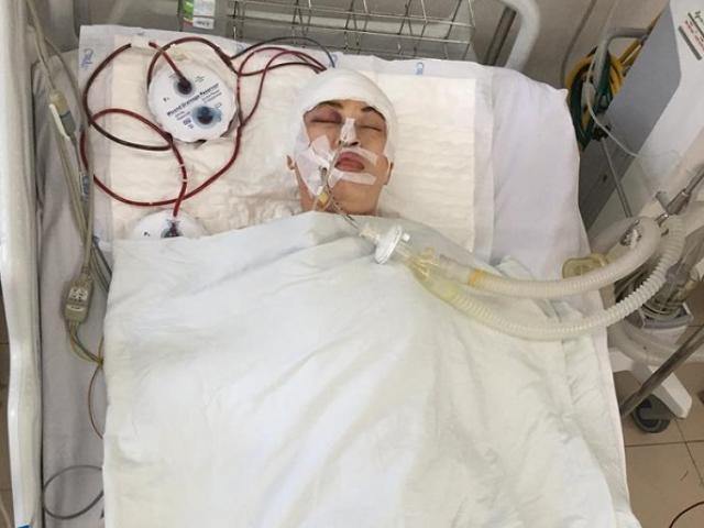 Bị tai nạn chấn thương sọ não nằm viện cả tháng, cô gái tên Vô Danh chưa ai đến nhận