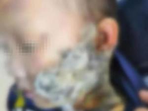 """Bé trai """"nát mặt"""" vì cách sơ cứu khi bị bỏng của cha mẹ, BS nói dừng ngay việc này"""