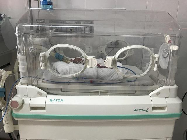 Mẹ Nghệ An sinh non con vỏn vẹn 6 lạng, sau 5 tháng nhìn bé ai cũng ngỡ ngàng