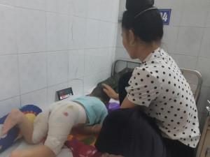 Mẹ dằn vặt chỉ vì phạm một sai lầm khiến con trai 3 tuổi bị lột hết da