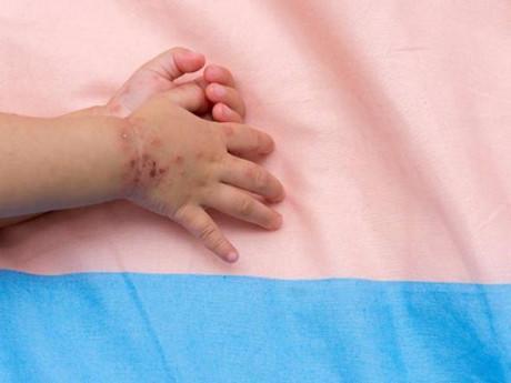 Hiểu đúng về bệnh tay chân miệng để phòng bệnh cho con