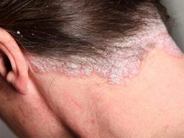 Từ vụ biến dạng đầu vì nhuộm tóc: Chị em phải khắc ghi điều này để không rước họa