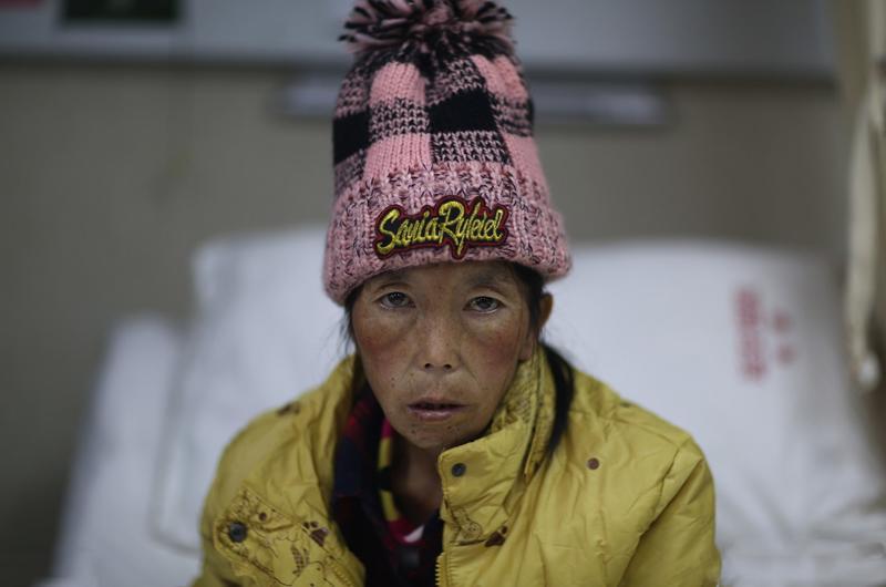 Người phụ nữ 41 tuổi tên Mã Phụng Trân (sống tại Vân Nam, Trung Quốc) này mới sinh con cách đây ít lâu. Vẻ ngoài khắc khổ chỉ còn da bọc xương này cũng không đủ phản ánh những khó khăn, gian nan mà chị Trân đã trải qua.