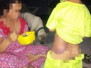 Bé trai lớp 1 khuyết tật một bên chân bị cô giáo đánh bầm tím người ở Long An