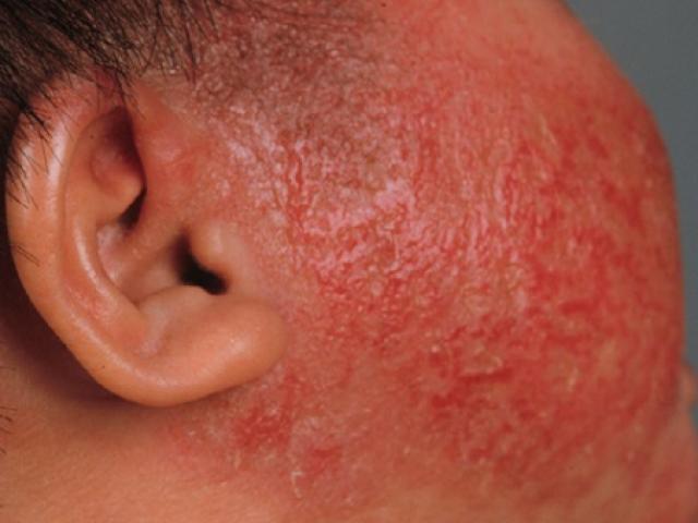 Bấn loạn khi da con đỏ như tôm luộc vì viêm da cơ địa, làm gì để con hết ngứa?