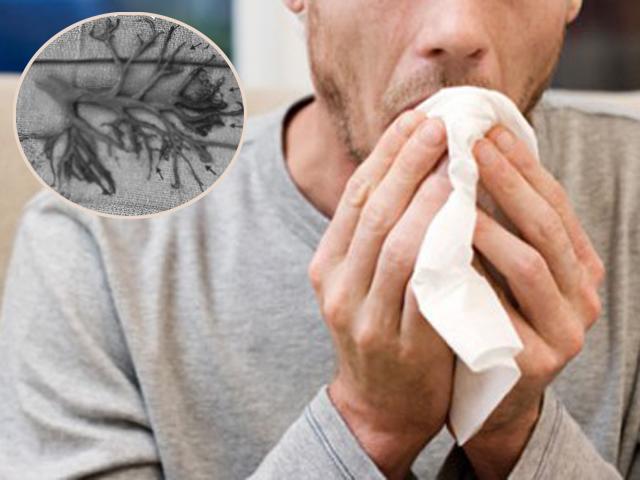 Bức ảnh người đàn ông tử vong vì ho văng phổi, lý giải của bác sĩ mới gây bất ngờ
