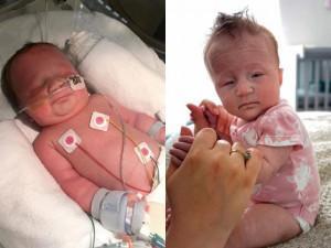 Con sinh ra suốt 5 ngày không mở mắt, bố mẹ tá hỏa trước chẩn đoán của bác sĩ