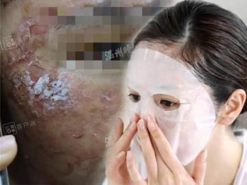 Hãi hùng với làn da lở loét vì sử dụng mặt nạ giấy, tất cả cũng chỉ tại ham rẻ