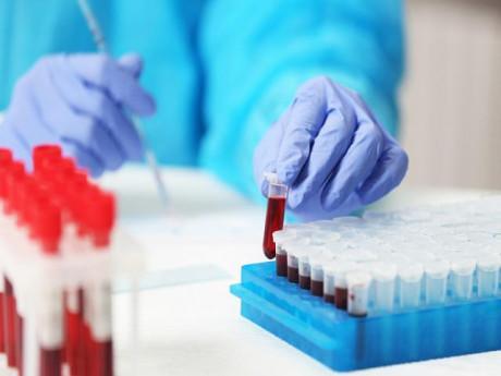 Các xét nghiệm máu khi mang thai nhất định mẹ bầu phải biết