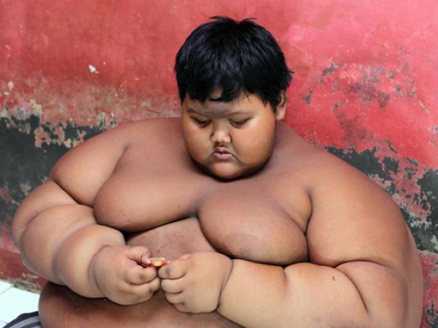 Cậu bé béo nhất thế giới nặng 200 kg bây giờ ra sao?
