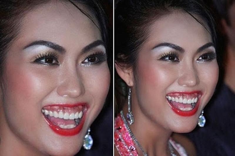Phi Thanh Vân là một trong những mỹ nhân có nụ cười kém duyên nhất trong showbiz Việt vì hở lợi quá nhiều. Tuy đã dùng đến dao kéo trợ giúp nhưng Phi Thanh Vân phải hứng chịu các biến chứng của việc thẩm mỹ răng: nướu thâm đen, bị sưng và hở lợi.