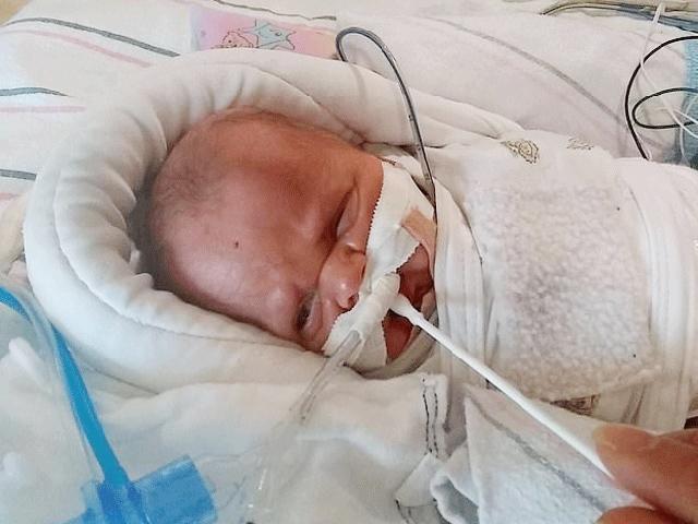 Phép màu với cậu bé đã sinh non nặng vỏn vẹn chỉ 450g lại không có ruột