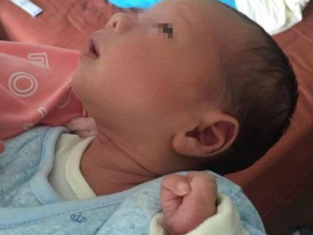 Không muốn sinh con ra bị dị tật, mẹ bầu tuyệt đối đừng làm những việc này!
