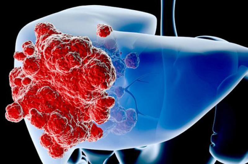 Mới đây, tổ chức ung thư toàn cầu vừa công bố số liệu mới nhất về tỷ lệ ung thư ở Việt Nam. Theo số liệu tổ chức này công bố, ở nước ta hiện nay, ung thư gan đang là căn bệnh đứng đầu về tỷ lệ mắc cũng như tử vong.