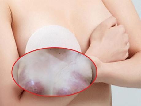 Bơm mỡ nhân tạo vào ngực với giá 12,5 triệu, cô gái trẻ vĩnh viễn không thể cho con bú