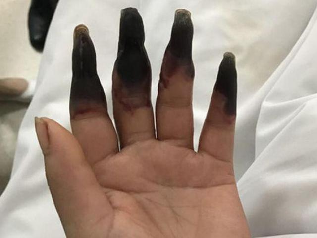 Dọn nhà, người phụ nữ bị hoại tử cả 8 ngón tay, nếu có thói quen này cần bỏ ngay